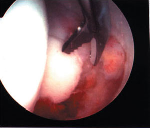 image of the removal of loose body from inside the hip from an article about hip arthroscopy