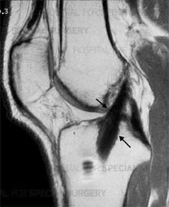 Anterior Cruciate Ligament (ACL) before an ACL tear occurs.