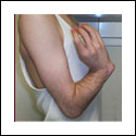 Upper Extremity Lengthening and Deformity Correction