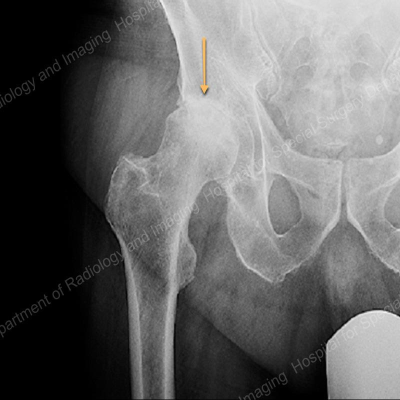 Osteoarthritis Of The Hip X Ray
