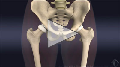 Animation: PAO for hip dysplasia in adolescents and young adults