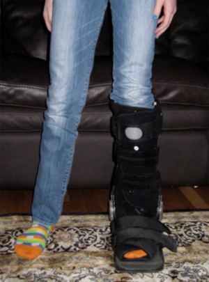 Photo of a child wearing a walking boot