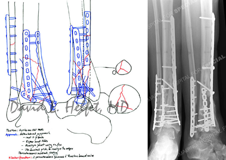 Preoperative plan for open reduction and internal fixation from a case example presented by the Orthopedic Trauma Service at Hospital for Special Surgery.