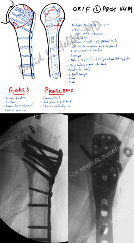 preoperative plan and fluoroscopic images following humerus fracture surgery from a case example of shoulder fracture from the orthopedic trauma service at Hospital for Special Surgery.