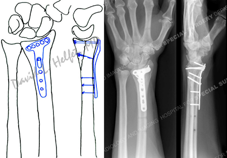 preoperative plan and radiographs at 6 months reveal a healed distal radius fracture from a case example presented by the orthopedic trauma service at Hospital for Special Surgery.