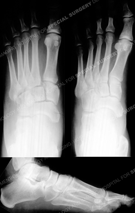 Anteroposterior, oblique and lateral radiographs revealing a Lisfranc fracture- dislocation from a case example from the Orthopedic Trauma Service at Hospital for Special Surgery