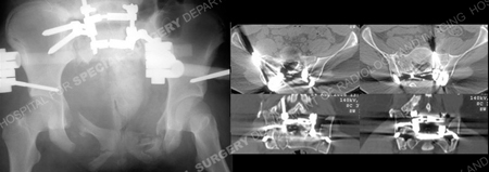 radiographs following fracture reduction and ct-scan from a case example of pediatric pelvic fracture from the orthopedic trauma service at Hospital for Special Surgery.