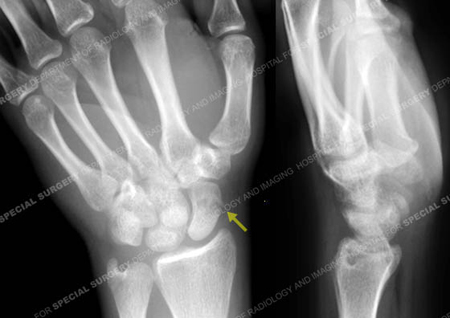 Radiograph revealing a scaphoid fracture from a case example of a hand fracture from Hospital for Special Surgery.