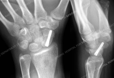 Anteroposterior lateral radiographs at 6 months illustrating a healed scaphoid fracture from a case example of Hand Fractures from the Orthopedic Trauma Service at Hospital for Special Surgery.