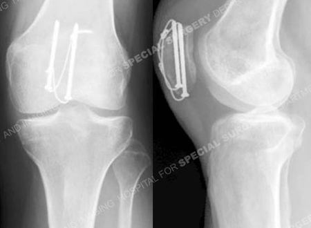 radiographs 13 months after surgery revealing a healed patella fracture from a case example presented by the orthopedic trauma service at Hospital for Special Surgery.