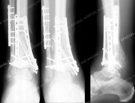 Radiographs at 5 months after the index surgery reveal a healed pilon fracture from a Case Example from Orthopedic Trauma Service at Hospital for Special Surgery.
