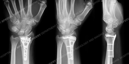 Radiograph at 6 months illustrates a healed distal radius fracture from a case example of a wrist fracture from the orthopedic trauma service at Hospital for Special Surgery.