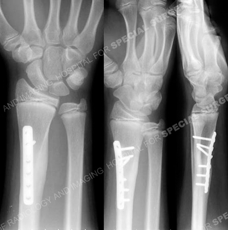 Radiographs at 8 months illustrating healed distal radius fracture from a case example presented by the orthopedic trauma service at Hospital for Special Surgery.