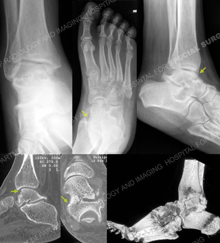 radiographs and ct scan revealing talus fracture from a case example presented by the orthopedic trauma service at Hospital for Special Surgery.