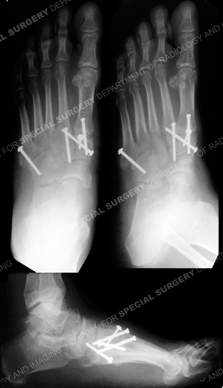 Anteroposterior, oblique and lateral radiographs at 3 months healing from a case example of lisfranc fracture dislocation from the orthopedic trauma service at Hospital for Special Surgery.
