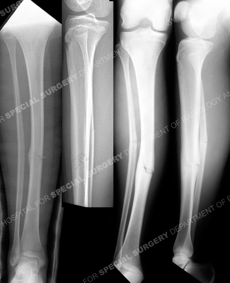 Radiographs revealing minimally displaced mid-shaft tibia stress fracture from a case example from the orthopedic trauma service at HSS.