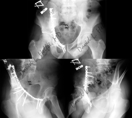 Radiographs two years following surgery of healed acetabular fracture from a case example presented by the orthopedic trauma service at hospital for special surgery.