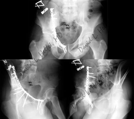 Acetubular Fractures Orthopedic Trauma Service