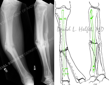 radiograph illustrating right-sided mid-shaft tibial nonunion with varus deformity from a case example for hospital for special surgery.