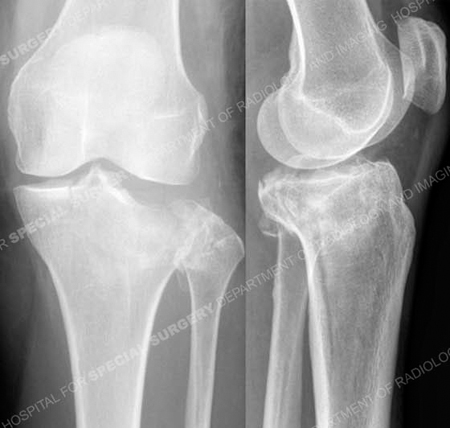 Radiographs revealing Schatzker II Tibial Plateau Fracture from a case example from the Orthopedic Trauma Service at Hospital for Special Surgery.