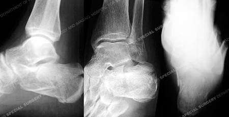 Radiograph revealing a calcaneus fracture from a Case Example of Foot Fractures from the Orthopedic Trauma Service at Hospital for Special Surgery.