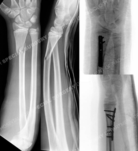 Radiographs reveal distal radius fracture from a case example presented by the orthopedic trauma service at Hospital for Special Surgery