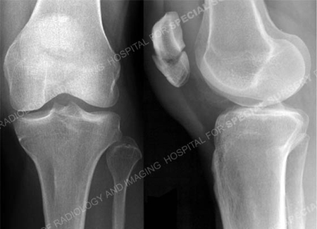Radiographs revealing transverse patella fracture from a case example presented by the orhopedic trauma service at hospital for special surgery.