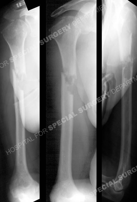 radiographs revealing right-sided pathologic mid-shaft humeral fracture from a case example presented by the orthopedic trauma service at Hospital for Special Surgery.