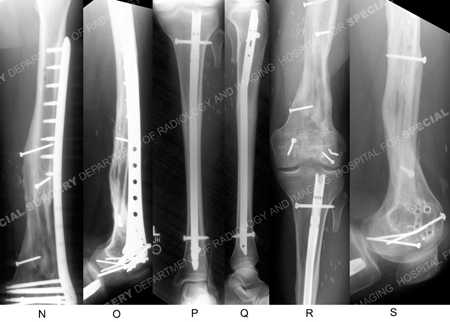 radiographs of healed distal femur fracture from case example presented hospital for special surgery's orthopedic trauma service