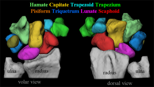 The 8 Carpal Bones: Hamate, Capitate, Trapezoid, Trapezium, Pisiform, Triquetrum, Lunate and the Scaphoid (in red)