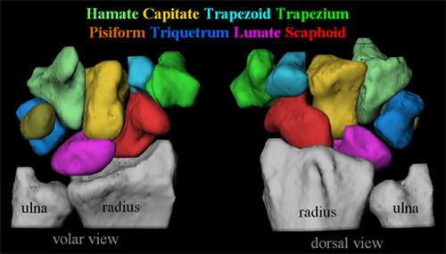 scaphoid-fractures-1.jpg