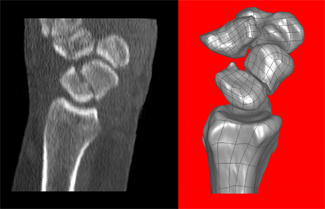 Sagittal reformatted computed tomography shows a fracture through the mid waist of the scaphoid