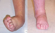 Before and After Foot Deformity Corrections from Hospital for Special Surgery