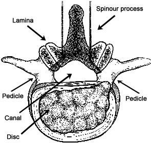 Lumbar Spinal Stenosis - An Overview