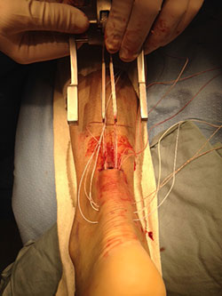 Photo of surgical repair of the patient's achilles tendon