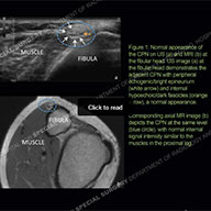 Ultrasound of the Month Case 56