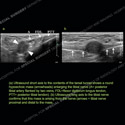 Ultrasound of the Month Case 90