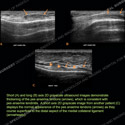 Ultrasound of the Month Case
