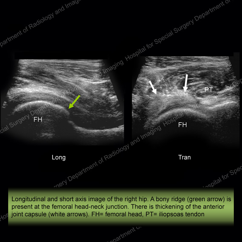 Ultrasound of the Month Case 10 - slide 1