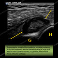 Ultrasound of the Month Case 21