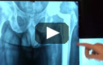 Image - Severe Hip Infection Patient Video Preview