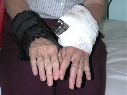 Image of a patient with external fixation frame in place