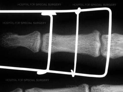 X-ray of external fixator for the proximal interpalaneal joint