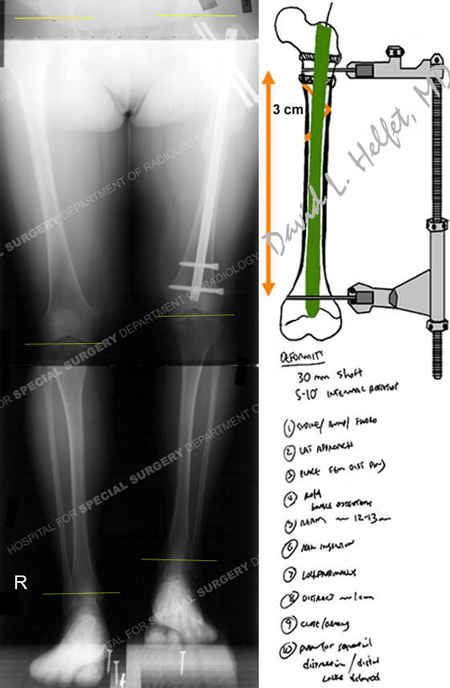 x-ray revealing subtrochanteric fracture from a case example on acute limb lengthening over an intramedullary nail from the orthopedic trauma service at Hospital for Special Surgery