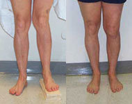 Before and After Images of Limb Lengthening from Hospital for Special Surgery