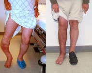 Before and After Images of Deformity Correction from Hospital for Special Surgery