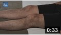 Image - Quadriceps Set video thumbnail