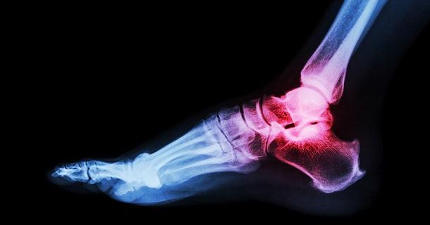 Arthritis at ankle joint (Gout Rheumatoid arthritis)