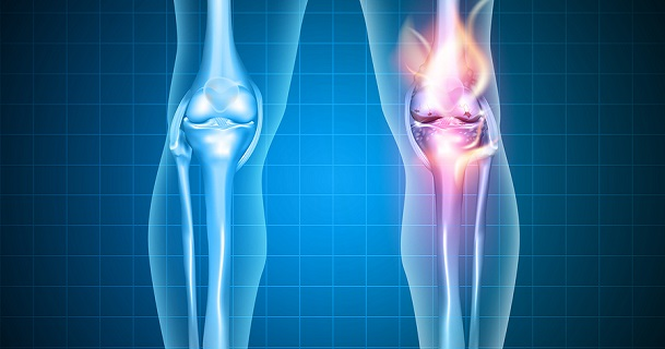 Burning Knee, Painful Knee And Normal Knee Joint, Abstract Desig