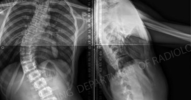 X-ray of pediatric scoliosis